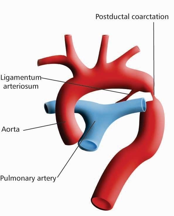La coarctation de l'Aorte
