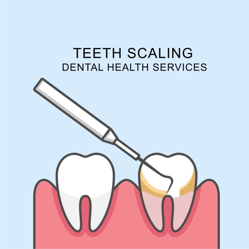 Scaling and cleaning