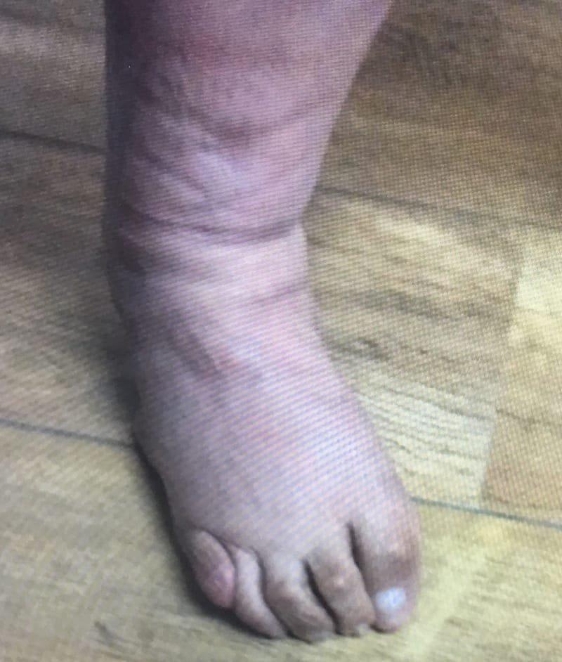 דיפורמציות בכפות הרגליים