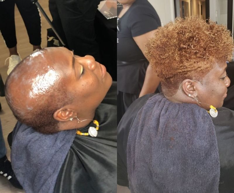 CUSTOM WIGS/CRANIAL PROSTHETICS (HAIR REPLACEMENT SYSTEM- THIN SKIN)