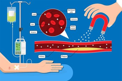 INTRAVENOUS CHELATION THERAPY