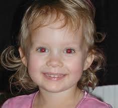 Question n°23 : Pourquoi les yeux sont-ils rouges sur certaines photos ?