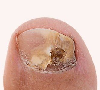 Fungal Nail Infections & Athlete's Foot